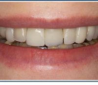 Porcelain Veneers and Crowns, Smile Makeover