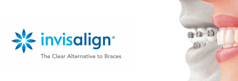 invisalign-richmond-hill