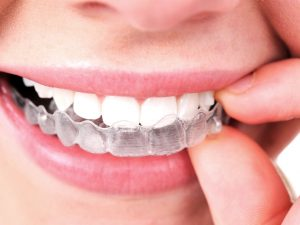 get Invisalign from the best cosmetic dentist in coral gables at miro dental centers