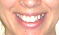 before-invisalign